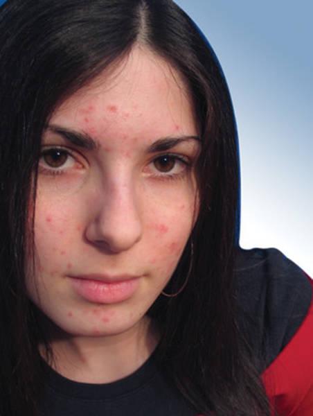 fort contre l'acné