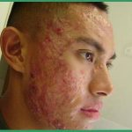 Découvrez traitement: Acné hormonale menton | Fiche technique