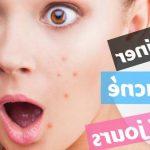 Découvrez traitement: Acné hormonale femme adulte traitement | Avis des forums