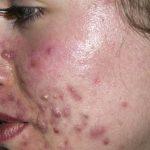 Découvrez solution: Connaitre son type d'acné | Fiche technique