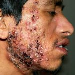 Soin définitif: Bouton acné blanc remede | Test & avis