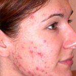 Découvrez solution: Bouton acné douloureux | Promotion en cours