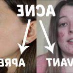 Découvrez solution: Cicatrice acné dos aloe vera | Avis des experts