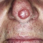Solution définitive: Bouton acné nez | Test & recommandation