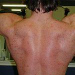 Découvrez traitement: Bouton acné torse et dos | Avis des utilisateurs
