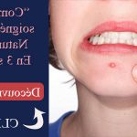 Découvrez solution: Cicatrice acné visage pomme de terre | Avis des clients