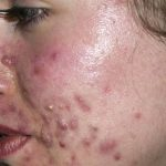 Découvrez traitement: Masque pour visage acné fait maison | Où l'acheter ?