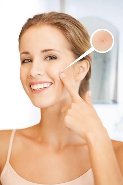 acné visage grossesse