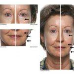 Découvrez traitement: Contre l'acné adulte | Test & recommandation