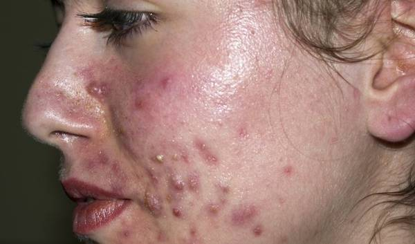 anti acné maison