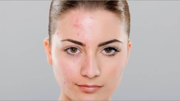 acné femme enceinte fille ou garcon