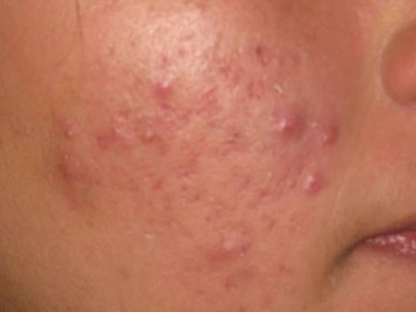 acné medecine douce