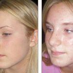 Découvrez soin: Acné persistant femme | Test complet