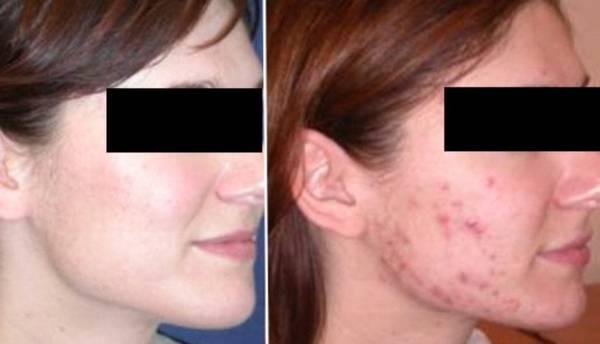 acné bas visage