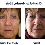 Découvrez soin: Acné adulte femme dermatologue | Avis & prix