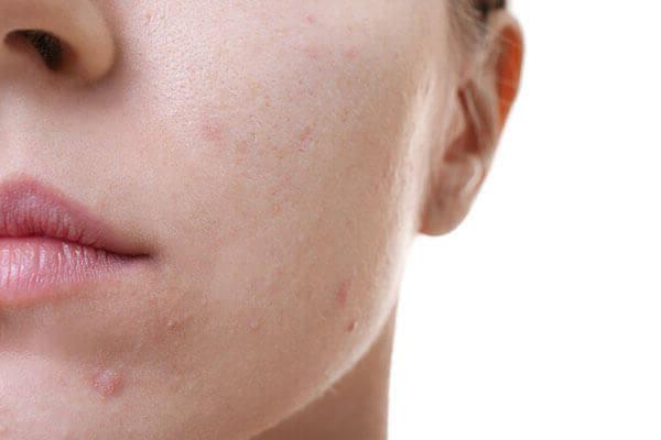 acné tetracycline