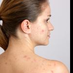 Découvrez traitement: Acne femme de 30 ans | Test complet