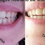 Découvrez solution: Blanchiment dentaire facette | Test & avis