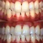 Découvrez traitement: Dents jaunes en france | Avis des clients