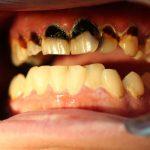 Découvrez solution: Blanchiment dents groupon | Test complet