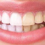 Découvrez solution: Dents jaunes subitement | Avis des forums