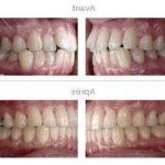 Soin permanent: Les dents jaunes naturellement | Promotion en cours