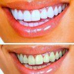 Découvrez solution: Blanchiment dent rabais | Code promo