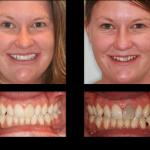 Découvrez traitement: Blanchiment dentaire rue marie christine | Avis & prix