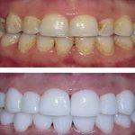 Découvrez traitement: Comment blanchir dents photoshop | Avis & prix