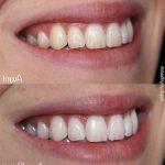 Découvrez solution: Dents jaunes appareil dentaire | Test & avis