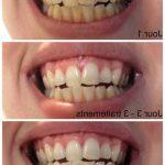Découvrez soin: Blanchiment dentaire naturel bicarbonate | Avis des forums