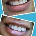 Découvrez traitement: Dents jaunes homme | Notre évaluation