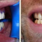 Découvrez solution: Blanchiment dentaire formation | Avis des utilisateurs