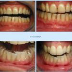 Découvrez solution: Dents jaunes vinaigre blanc | Test & avis