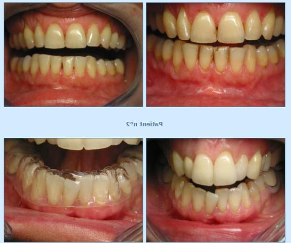 dents jaunes c quoi