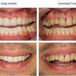 Traitement permanent: Blanchir dent fumeur | Avis des clients
