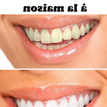 Découvrez solution: Eviter dents jaunes café | Avis des forums