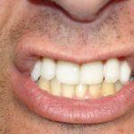 Découvrez traitement: Dents jaunes au soleil | Test & avis