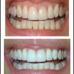 Solution permanent: Pour blanchir les dents bicarbonate de soude | Avis des clients