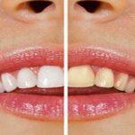 Découvrez traitement: Traitement naturel pour blanchir les dents | Avis des experts
