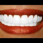 Découvrez solution: Blanchiment dentaire yabiladi | Test & opinions