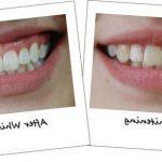 Traitement définitif: Dents jaunes comment blanchir | Test complet