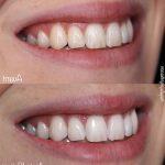 Découvrez traitement: Dents jaunes remède de grand-mère | Avis des testeurs