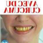 Découvrez traitement: Dents définitives poussent jaunes | Test complet