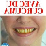 Soin permanent: Blanchiment dent espagne | Avis & prix
