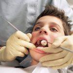 Solution permanent: Dents jaunes en allemand | Composition