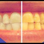 Découvrez solution: Blanchir dent morte naturellement | Promotion en cours