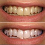 Traitement définitif: Blanchiment dent montpellier | Avis des forums