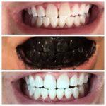 Découvrez traitement: Dents jaunes que manger | Où l'acheter ?