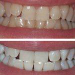 Découvrez soin: Blanchiment dentaire jean coutu | Code promo